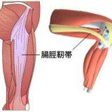 長引く腸脛靭帯炎、練習を継続しながら治療するために私がやったこと。